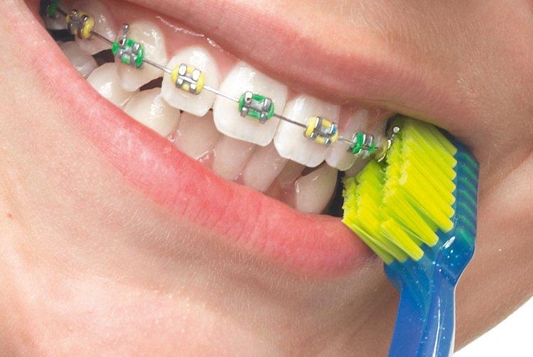 Профессиональные щетки для зубов